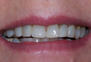 207 Dental care composite build-ups - after