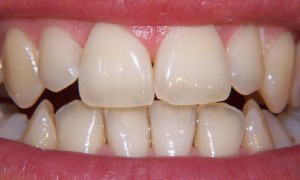 Tooth whitening at 207 Dentalcare before