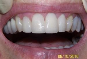 Veneers crowns at 207 dentalcare after