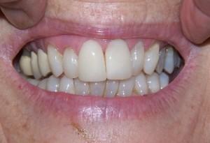 Veneers crowns at 207 dentalcare before