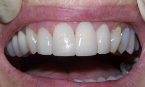 Veneers crowns at 207 dentalcare after