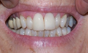 Veneers crowns at 207 dentalcare before