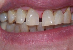 207 Dental care composite build-ups -before