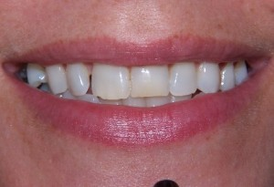 Tooth whitening at 207 Dentalcare after 2