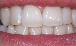 Tooth whitening at 207 Dentalcare after
