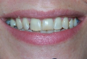 Tooth whitening at 207 Dentalcare before 2