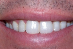 composite build ups at 207 Dentalcare