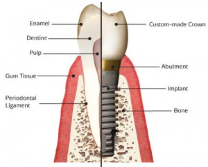 implant_anatomy